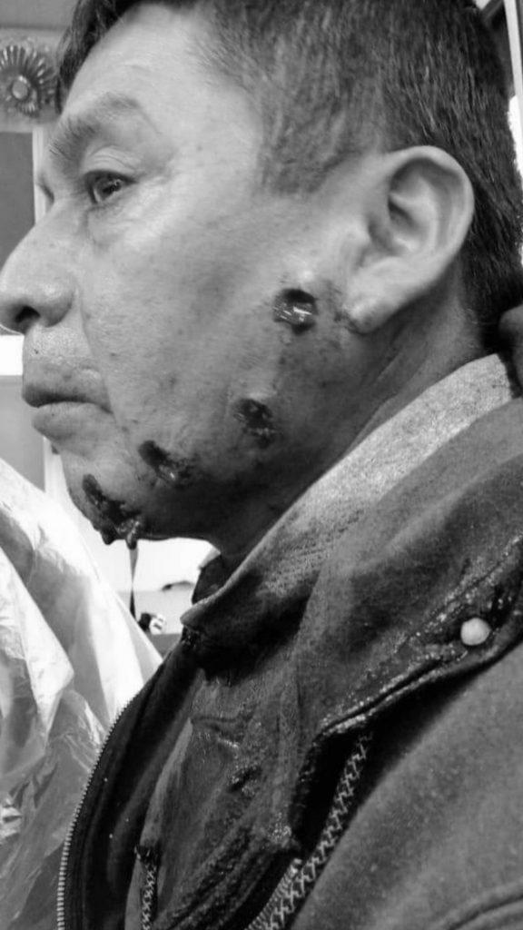 Lonko recibe ataque de perdigones disparados directamente a su cara: Acusan violenta represión de Carabineros en Lumaco