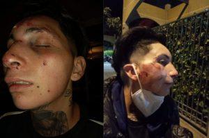 Ataque lesbofóbico: Mujer fue golpeada con un fierro hasta quedar inconsciente
