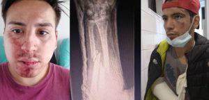 Dentista agrede y amenaza con arma a pareja homosexual: Lanza insultos y causa lesiones graves
