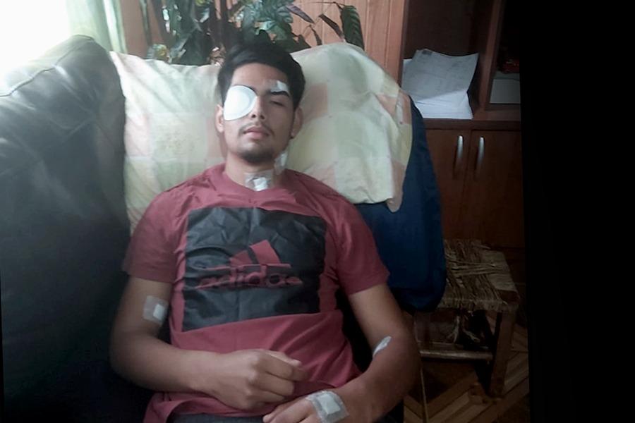 "Cristián Millapan, joven mapuche víctima de trauma ocular: ""Me dispararon directo a la cara"""